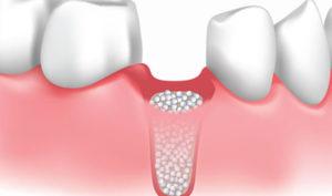 Dentista en Alcorcón y Móstoles - Clínica Stoma - Implantes sin hueso