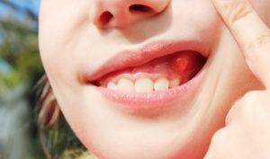 Ortodoncistas en Alcorcón y Móstoles en Clínica Stoma - Quistes dentales