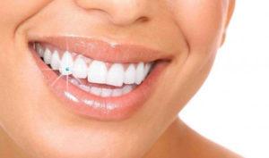 Dentista en Alcorcón y Móstoles - Clínica Stoma - Piercing dentales