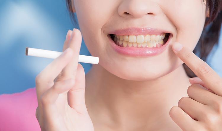 Dentista en Alcorcón y Móstoles - Clínica Stoma - Implantes dentales en fumadores
