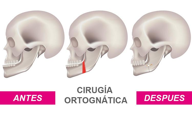 Dentista en Alcorcón y Móstoles - Clínica Stoma - Cirugía ortognática