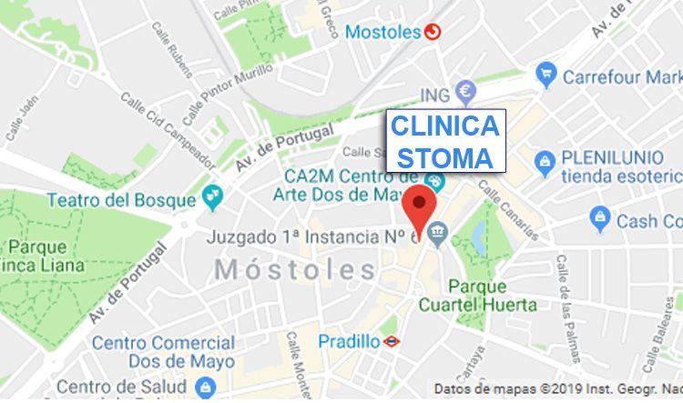 Dentista en Alcorcón y Móstoles - Clínica Stoma - clinica dental en Estoril II de Móstoles