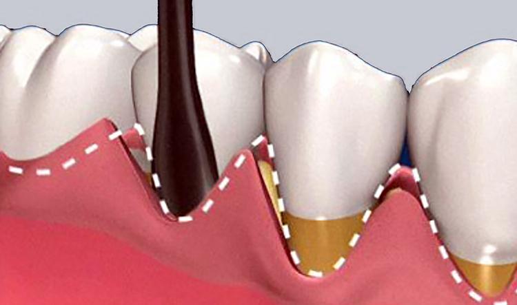 Dentista en Alcorcón y Móstoles - Clínica Stoma - Cirugía plástica de encías