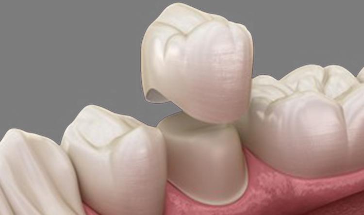 Coronas cerámicas dentales