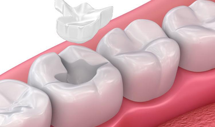 Ortodoncistas en Alcorcón y Móstoles en Clínica Stoma - Incrustaciones dentales