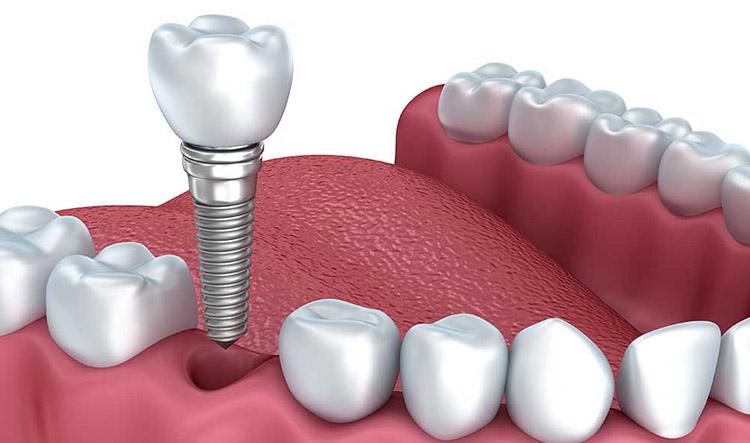 Implantes dentales en Móstoles y Alcorcón - Clínica Stoma - Implantes dentales