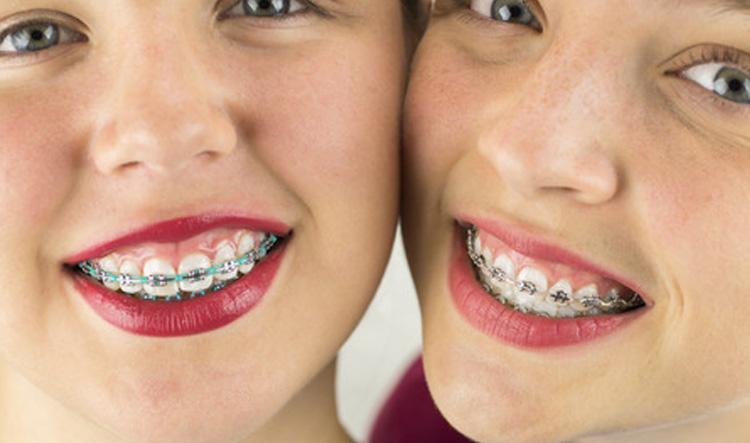 Ortodoncia en Móstoles y Alcorcón en Clínica Stoma - Ortodoncia para niños