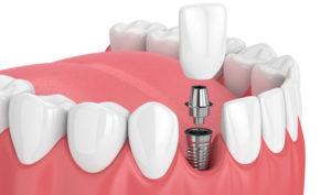 Dentista en Alcorcón y Móstoles - Clínica Stoma - Implantes dentales