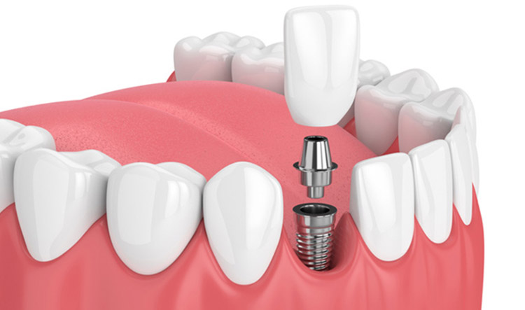 ¿Hay rechazo de los implantes?