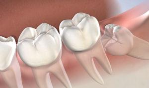 Dentista en Alcorcón y Móstoles - Clínica Stoma - Las muelas del jucio