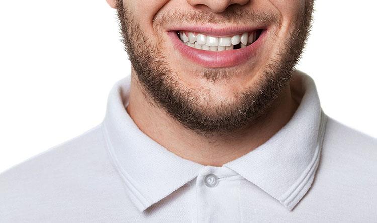 Dentista en Alcorcón y Móstoles - Clínica Stoma - Reponer diente perdido en adultos