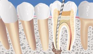 Ortodoncistas en Alcorcón y Móstoles en Clínica Stoma - Qué es una endodoncia