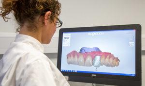 Implantes dentales en Alcorcón y Móstoles en Clínica Stoma - Estudio de implantes dentales