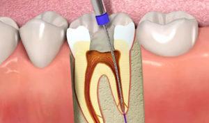 Ortodoncistas en Alcorcón y Móstoles en Clínica Stoma - Endodoncia causas y tratamientos