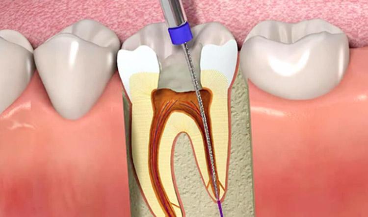 Endodoncia. Causas y tratamiento