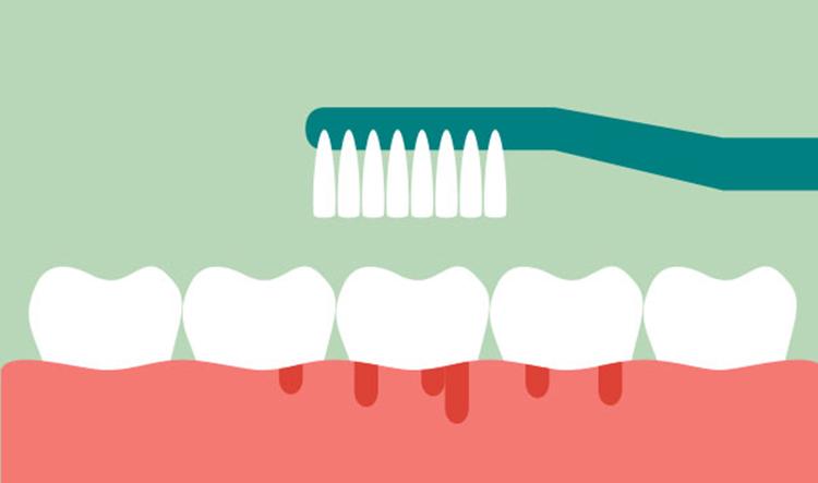 Dentista en Alcorcón y Móstoles - Clínica Stoma - Sangrado de encías en embarazadas