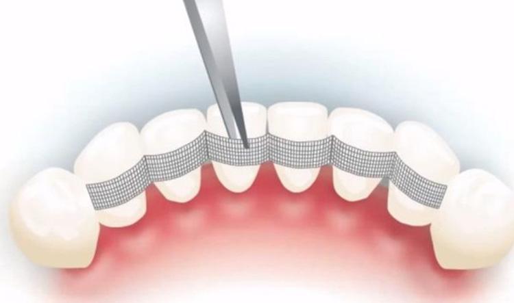 Ferulización dental en Móstoles y Alcorcón - Clínica Stoma - Ferulización dental y movilidad de dientes