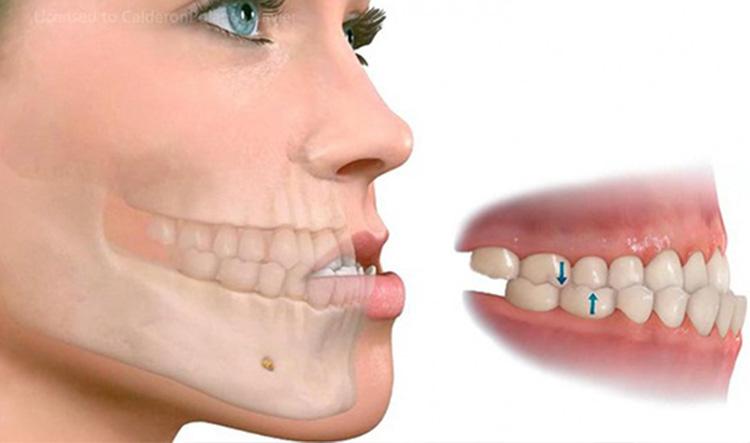 Dentista en Alcorcón y Móstoles - Clínica Stoma - Maloclusión dental