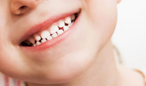 Dentista en Alcorcón y Móstoles - Clínica Stoma - Bruxismo en niños