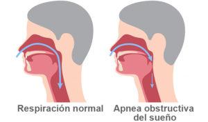 Ortodoncistas en Alcorcón y Móstoles en Clínica Stoma - Hilos tensores - Apnea del sueño