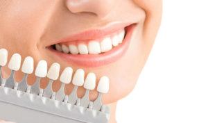 Dentista en Alcorcón y Móstoles - Clínica Stoma - Estética dental