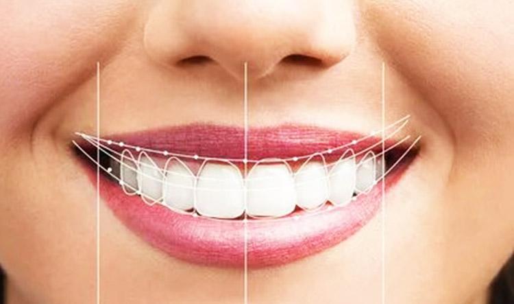 Dentista en Alcorcón y Móstoles - Clínica Stoma - Digital smile Design