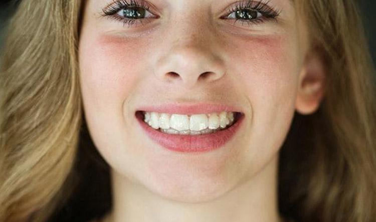 Enseña tu sonrisa con la ortodoncia invisible