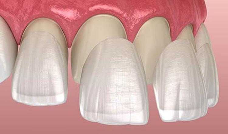Dentista en Alcorcón y Móstoles - Clínica Stoma - Carillas dentales de porcelana
