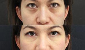 Ortodoncistas en Alcorcón y Móstoles en Clínica Stoma - Elimina las ojeras