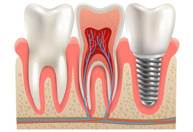 Dentista en Alcorcón y Móstoles - Clínica Stoma - Cómo escoger una clínica de implantes dentales-sec