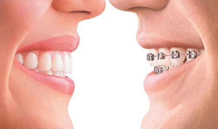 Implantes dentales en Alcorcón y Móstoles en Clínica Stoma - Diferencias entre brackets e Invisalign