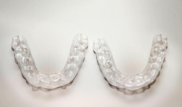 Dentista en Alcorcón y Móstoles - Clínica Stoma - ¿Qué son los ataches de Invisalign y para qué sirven?