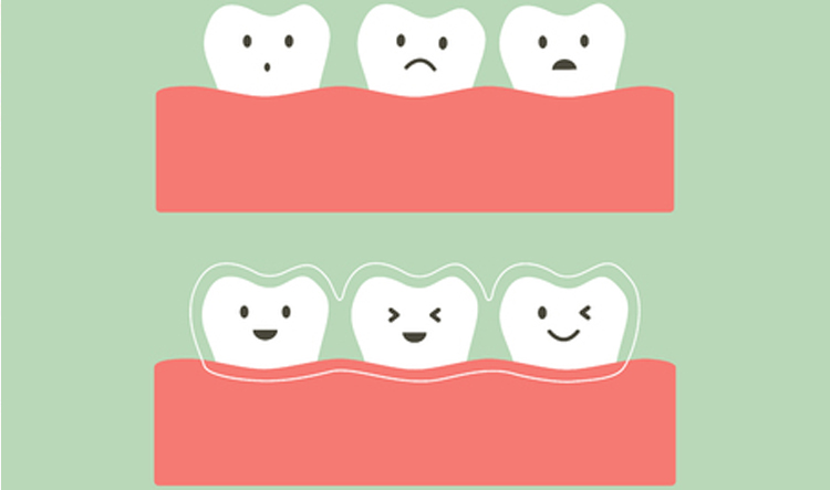 Ortodoncia invisible Invisalign en Móstoles y Alcorcón en Clínica Stoma - Dientes felices