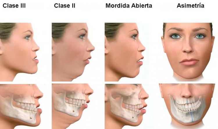 Dentista en Alcorcón y Móstoles - Clínica Stoma - Maloclusiones dentales