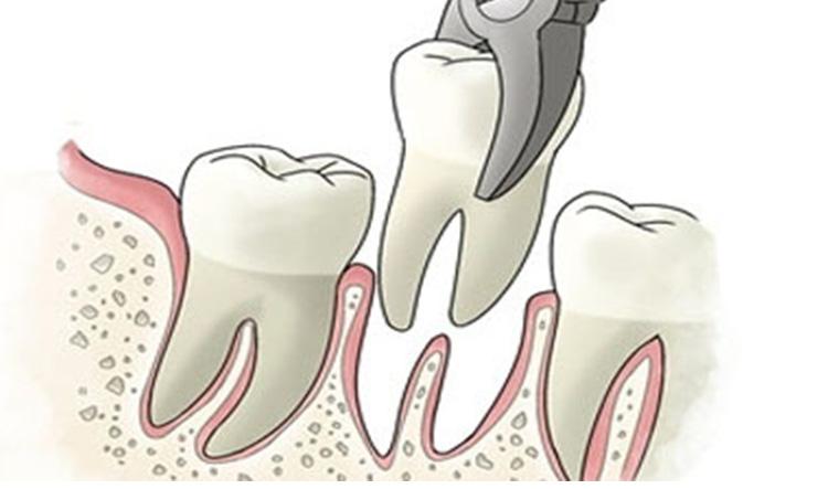 Extracción de dientes