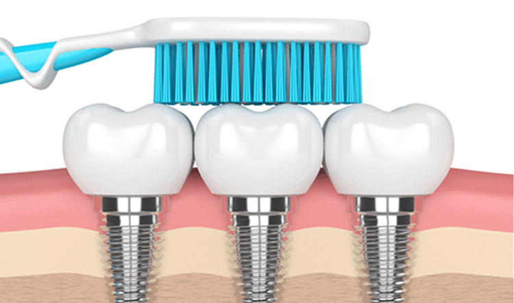 Implantes dentales en Móstoles y Alcorcón - Clínica Stoma - Cuidado de los implantes