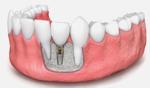 Dentista en Alcorcón y Móstoles - Clínica Stoma - Regeneración ósea en implantes dentales