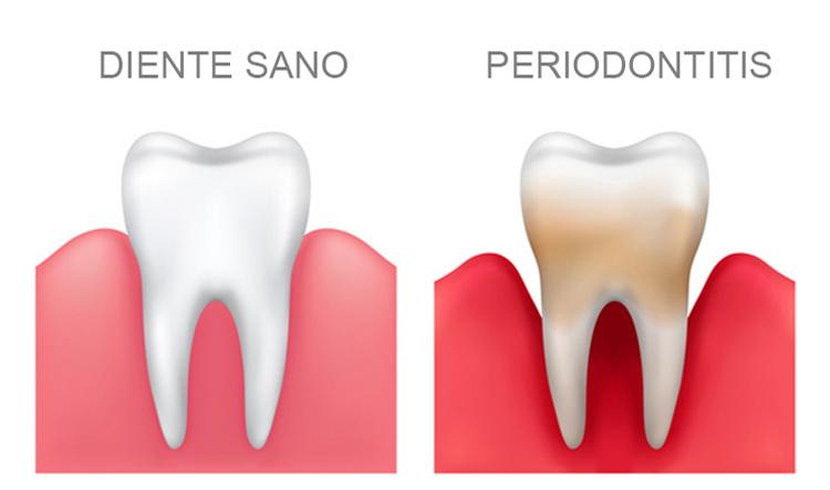 Dentista en Alcorcón y Móstoles - Clínica Stoma - Enfermedad periodontal