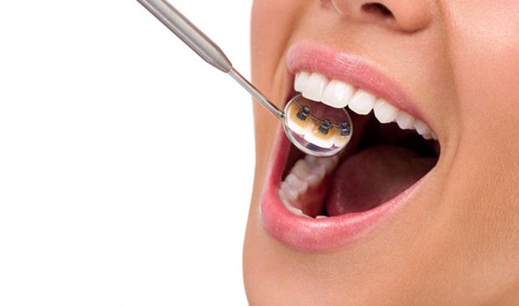 Clínica dental en Móstoles y en Alcorcón - Stoma - pagina Ortodoncia - linguales