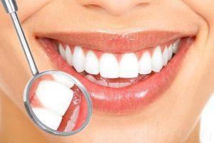 Ortodoncistas en Alcorcón y Móstoles en Clínica Stoma - Hilos tensores - Blanqueamiento dental