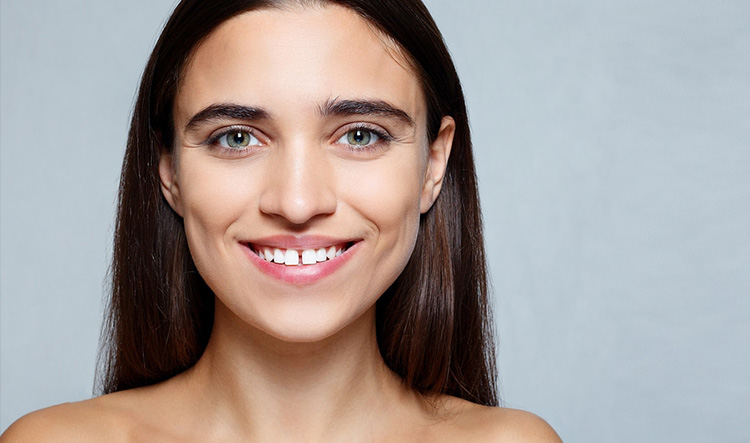 Implantes dentales en Móstoles y Alcorcón - Clínica Stoma - diastemas-1